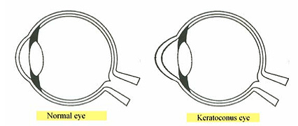 normal eye compared to keratoconus eye