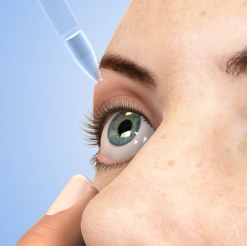 animated person putting in eye drops for dry eyes