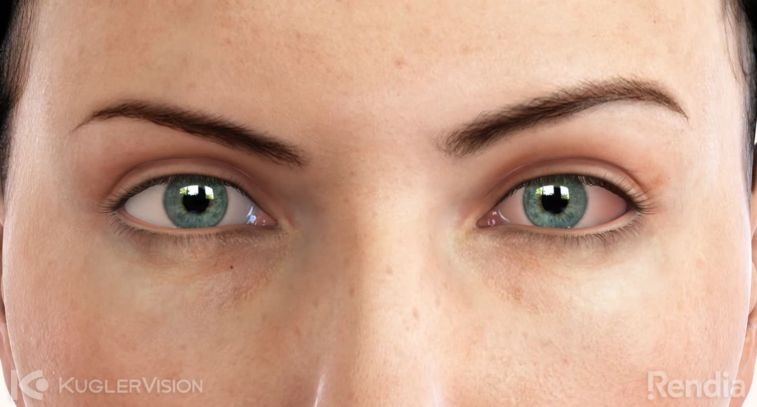 pink eye eye condition