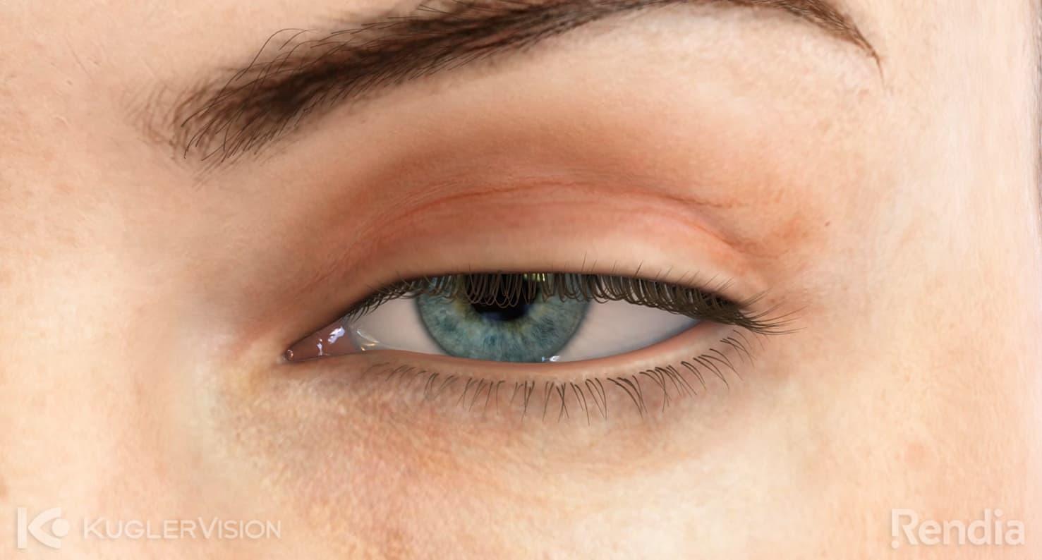 ptsosis eye condition
