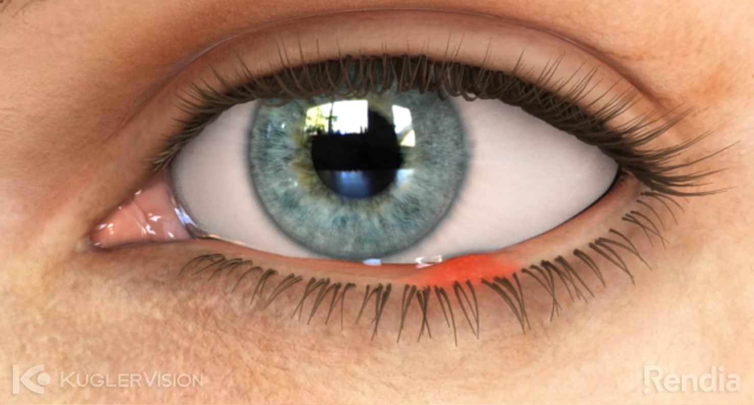 stye eye condition