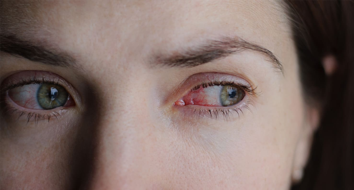 woman who has red eyes from contact lens-related infection