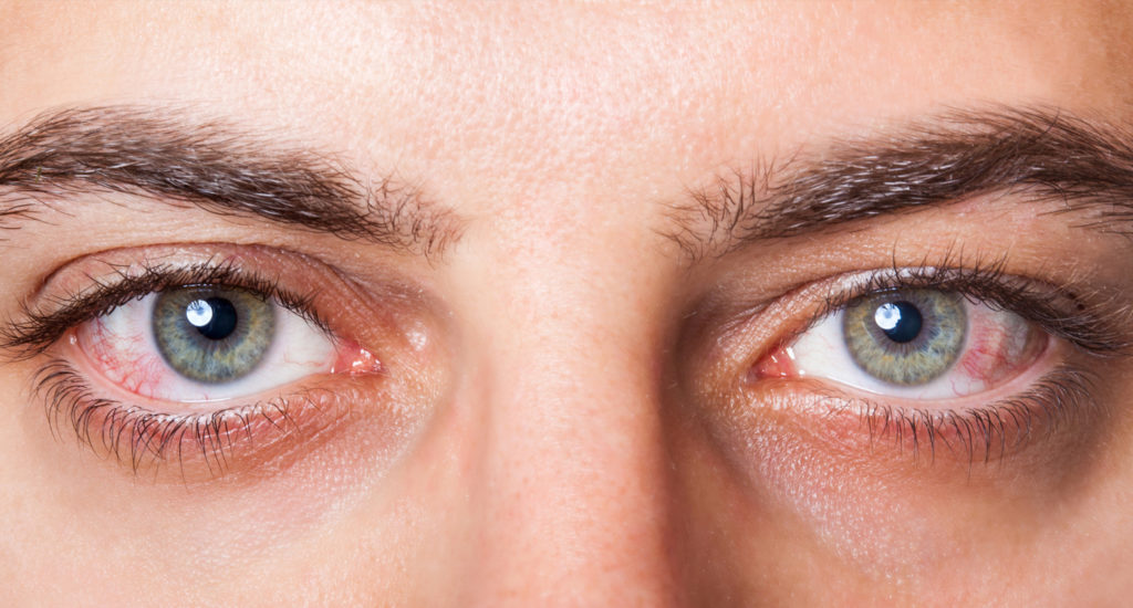 close up on dry eyes