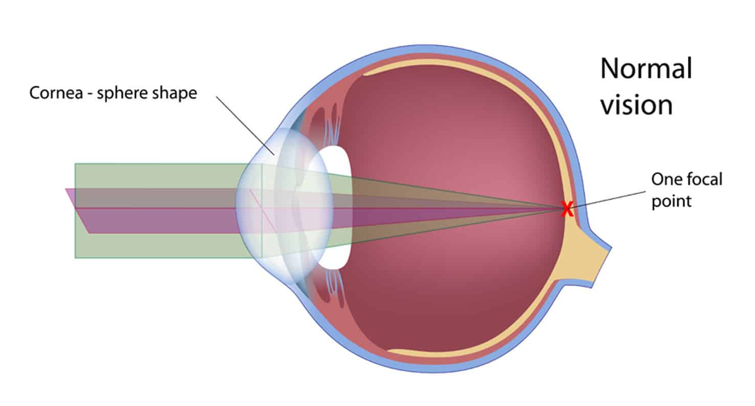 Diagram of the anatomy of a normal eye with good vision