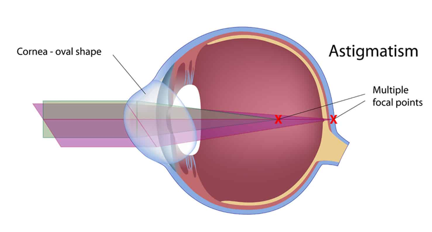 Diagram of the anatomy of an eye with astigmatism