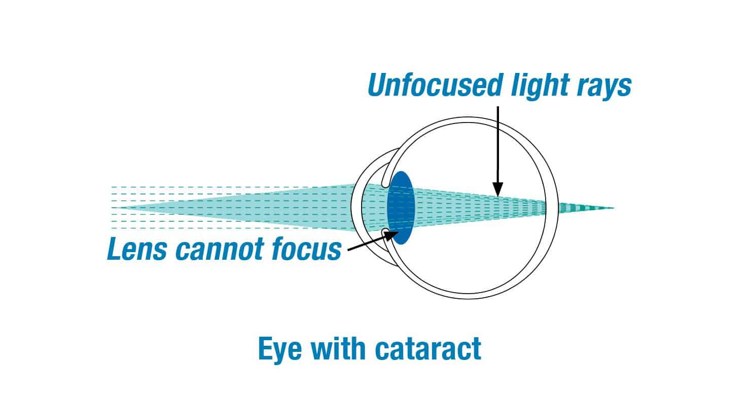 Diagram of an eye with a cataract