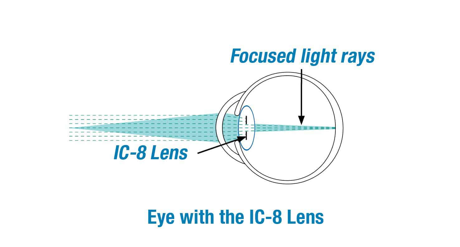 Diagram illustrating the use of the IC-8 lens for correction of cataracts